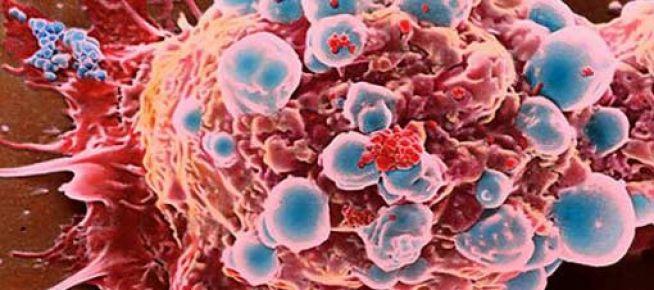 Kanserlerin yüzde 30'u önlenebilir
